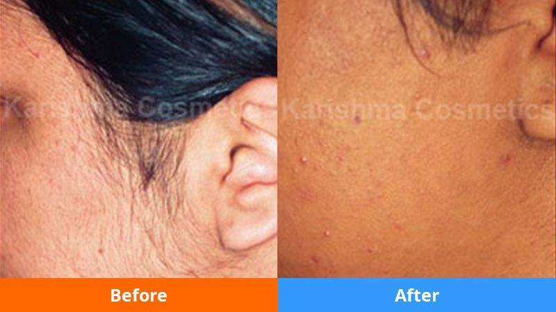 Permanant-hair-removal